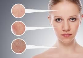 Cách chăm sóc da mụn không để lại sẹo rỗ.